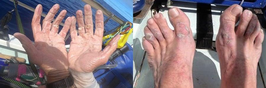 Blaren_op_handen_en_voeten